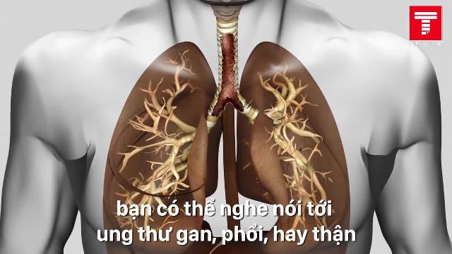 Vì sao tim không ung thư 2