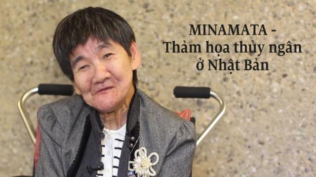 Bệnh Minamata: Một thảm họa thủy ngân ở Nhật Bản